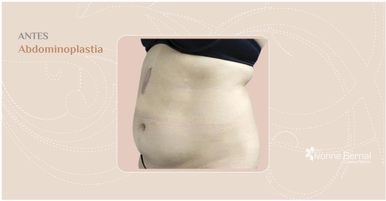 Before-Abdominoplastia