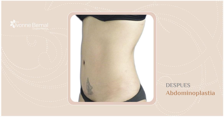 After-Abdominoplastia