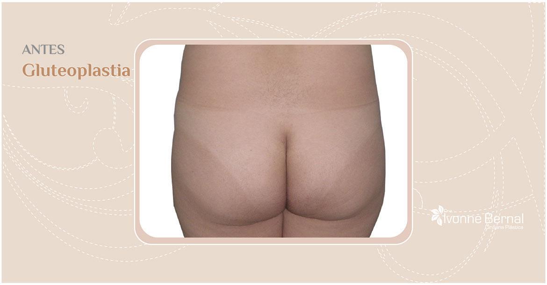 Before-Gluteoplastia