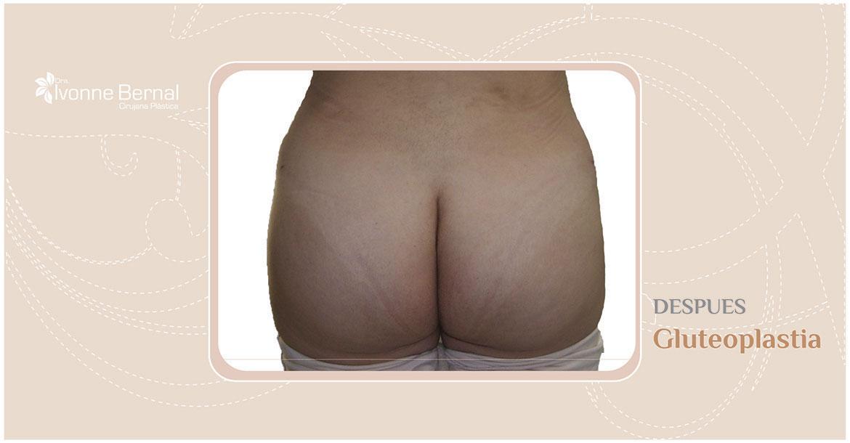 After-Gluteoplastia