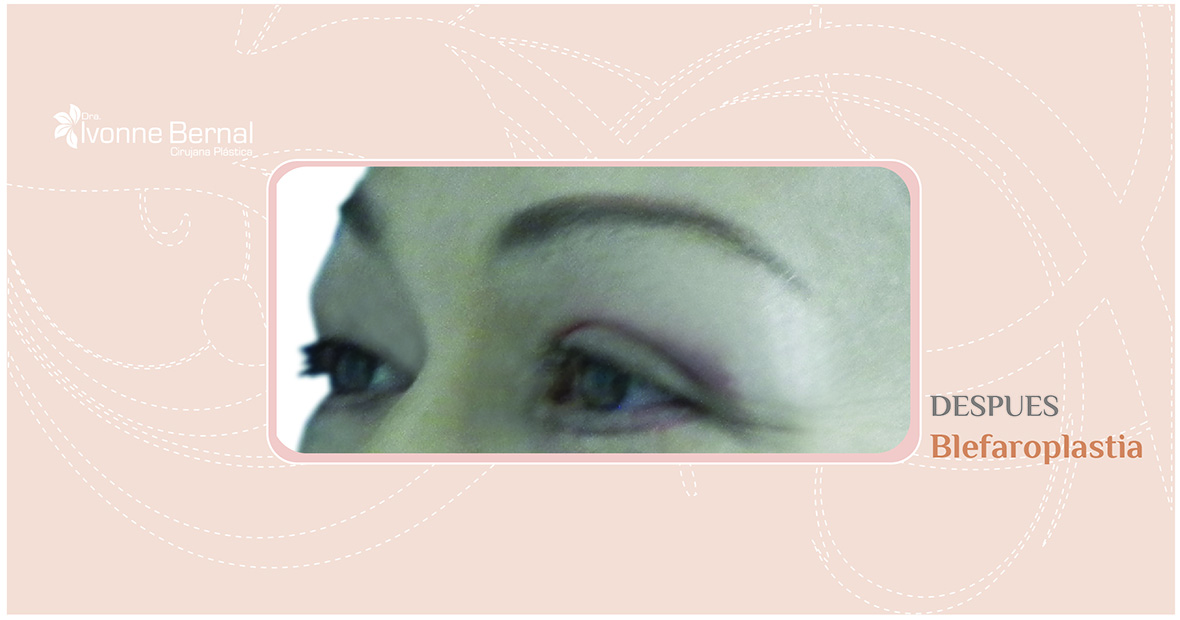After-Blefaroplastia