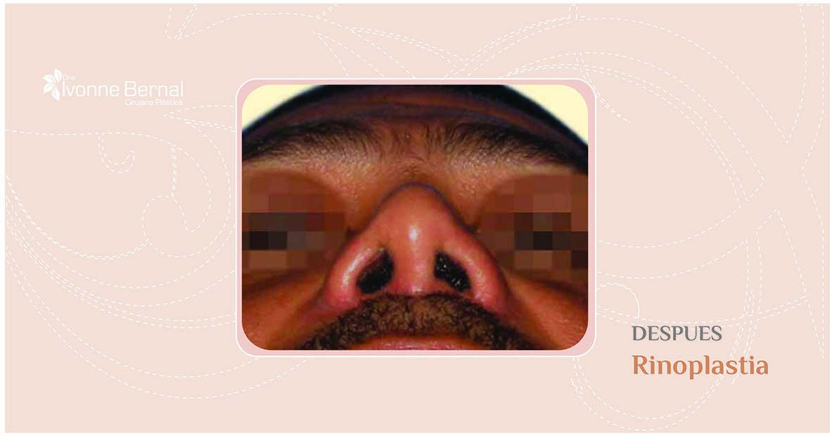 After-Rinoplastia